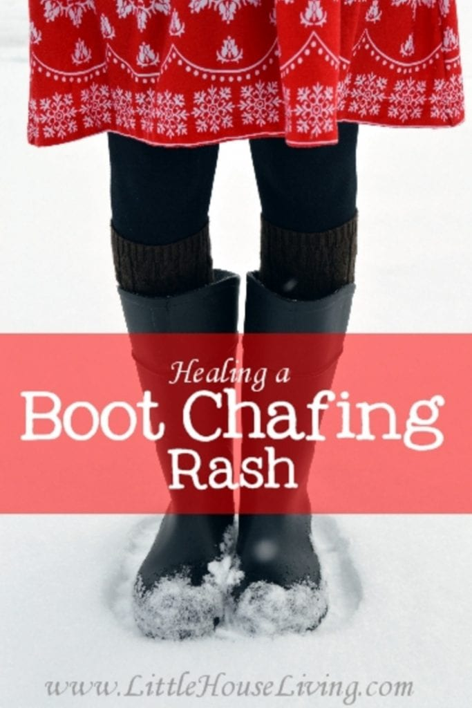 Do you struggle with rashes left behind from your boots during winter months and rainy seasons? Learn how to Heal a Boot Chafing Rash easily and naturally! #naturalremedy #bootchafing #winter #winterproblems #healing